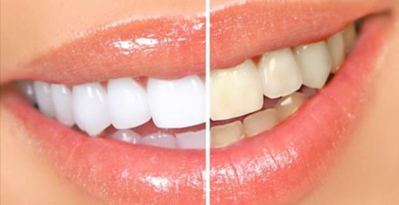 Как отбелить зубах в домашних условиях отзывы 876