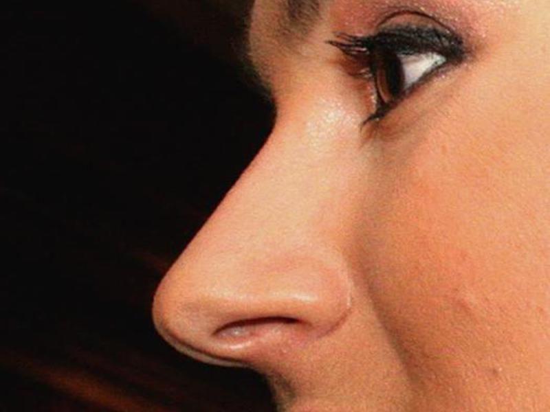 Прямой нос